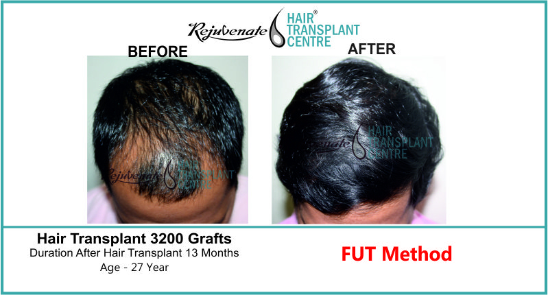 27 Yr FUT Hair Transplant Result Top-Side Image 3200 Grafts