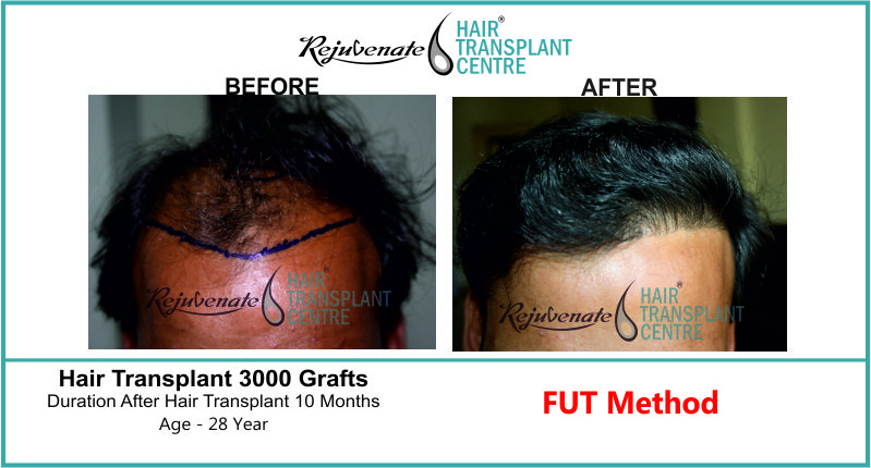 28 Yr FUT Hair Transplant Result Front-Side Image 3000 Grafts