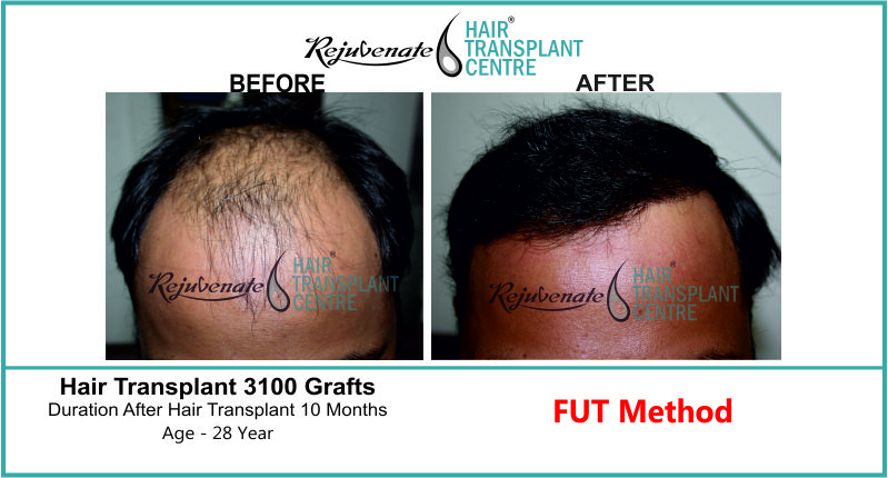 28 Yr FUT Hair Transplant Result Front-Side Image 3100 Grafts