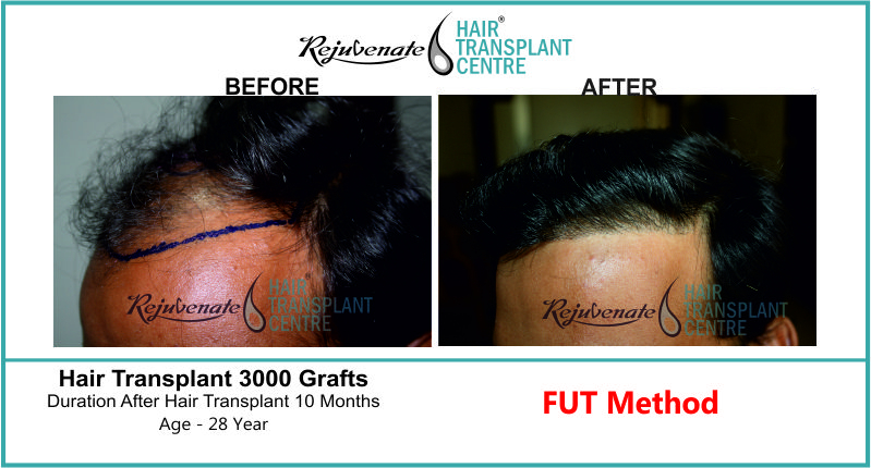 28 Yr FUT Hair Transplant Result Left-Side Image 3000 Grafts