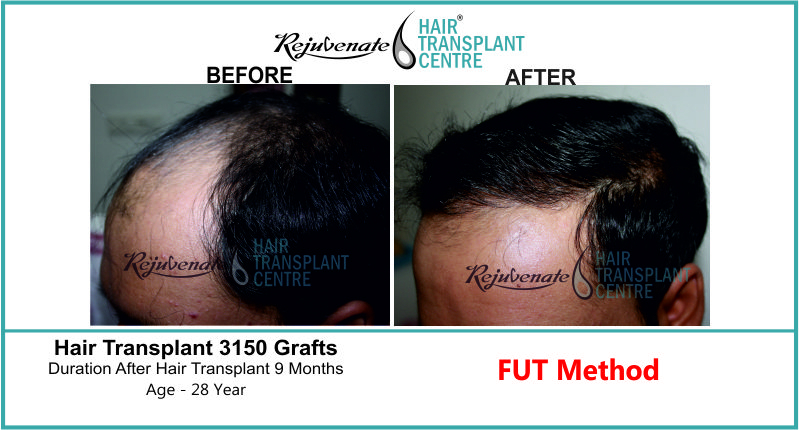28 Yr FUT Hair Transplant Result Left-Side Image 3150 Grafts