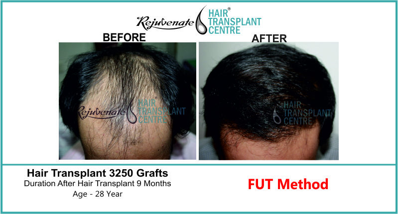 28 Yr FUT Hair Transplant Result Top-Side Image 3250 Grafts