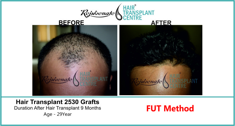 29 Yr FUT Hair Transplant Result Front-Side Image 2530 Grafts