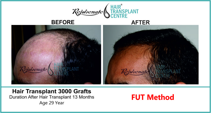29 Yr FUT Hair Transplant Result Left-Side Image 3000 Grafts
