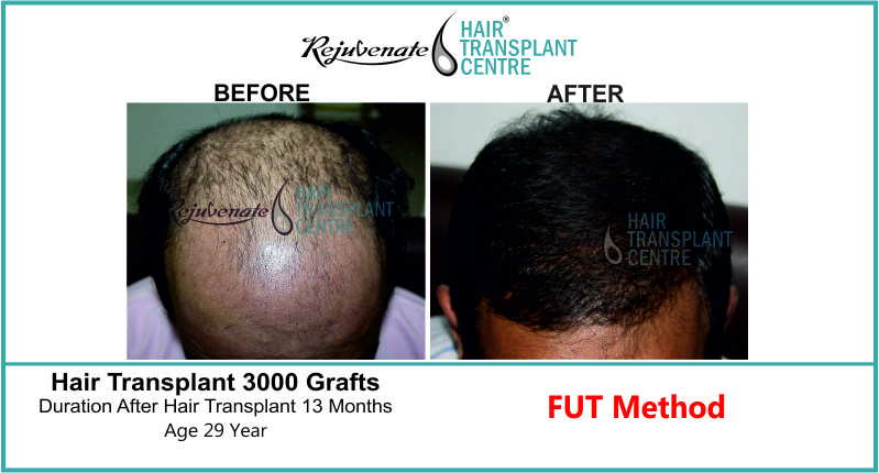 29 Yr FUT Hair Transplant Result Top Image 3000 Grafts