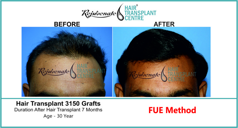 30 Yr FUE Hair Transplant Result Front-Side Image 3150 Grafts