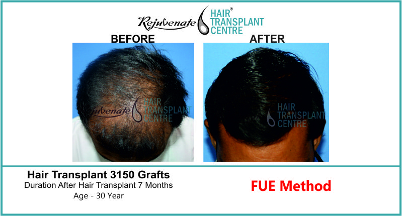 30 Yr FUE Hair Transplant Result Top-Side Image 3150 Grafts