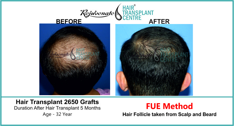 32 Yr FUE Hair Transplant Result Beck-Side Image 2650 Grafts