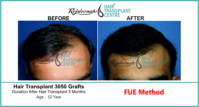 32 Yr FUE Hair Transplant Result Front-Side Image 3050 Grafts