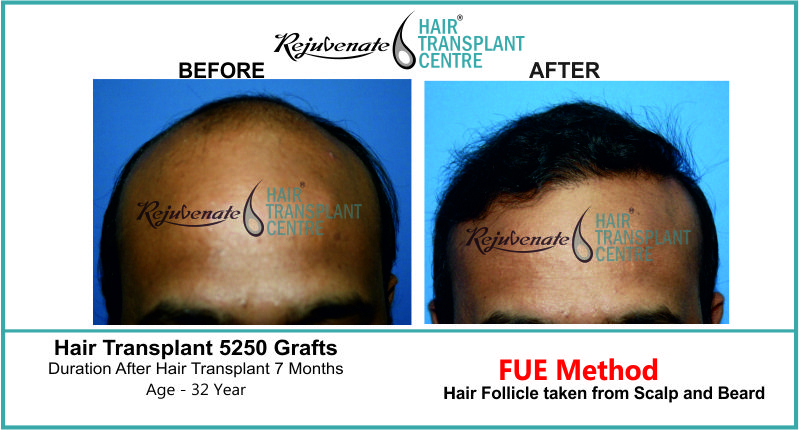 32 Yr FUE Hair Transplant Result Front-Side Image 5250 Grafts