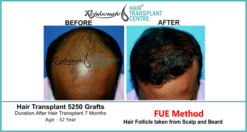 32 Yr FUE Hair Transplant Result Top-Side Image 5250 Grafts