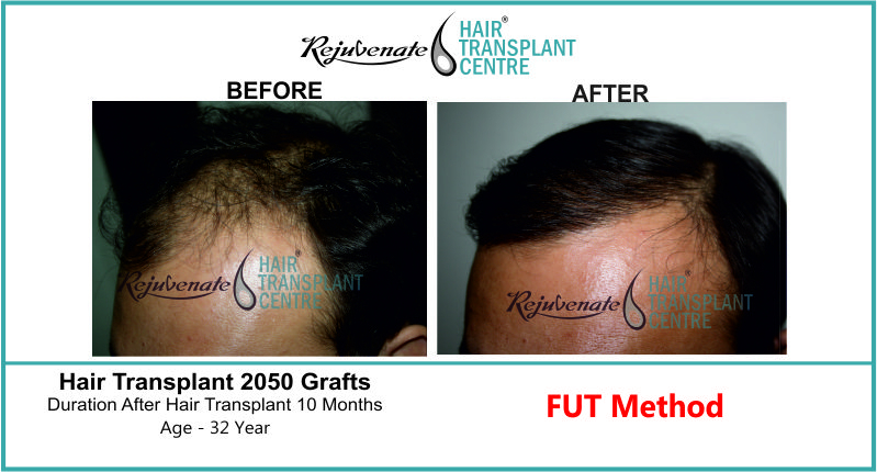 32 Yr FUT Hair Transplant Result Right-Side Image 2050 Grafts