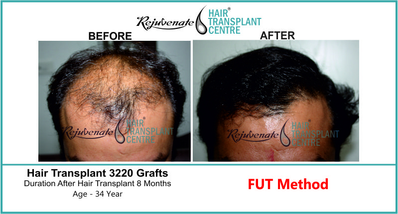 34 Yr FUT Hair Transplant Result Front-Side Image 3220 Grafts 1