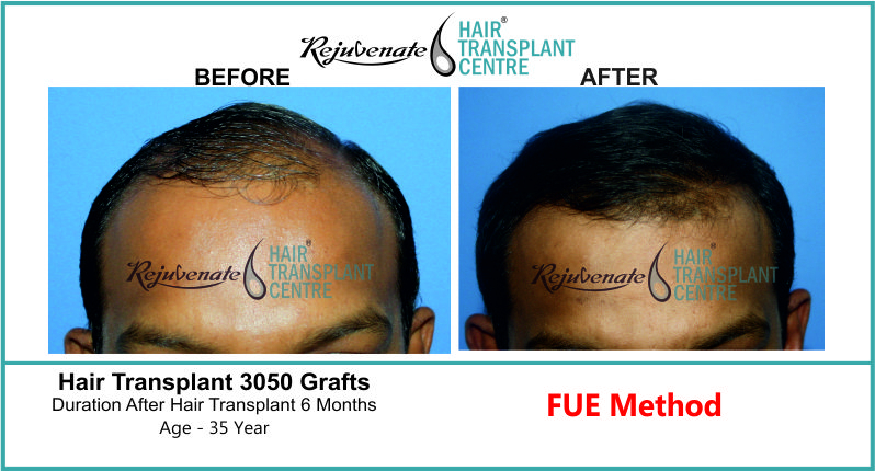 35 Yr FUE Hair Transplant Result Front-Side Image 3050 Grafts