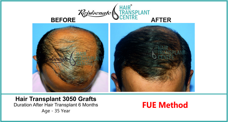 35 Yr FUE Hair Transplant Result Top-Side Image 3050 Grafts