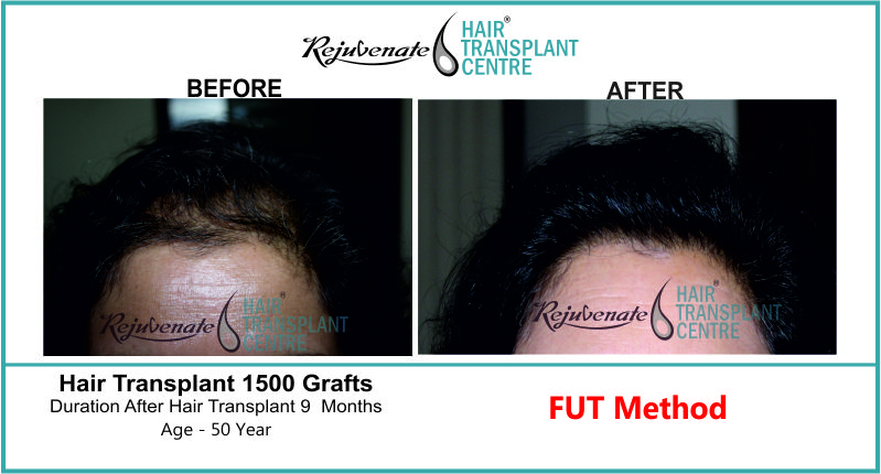 35 Yr FUT Hair Transplant Result Front-Side Image 2500 Grafts