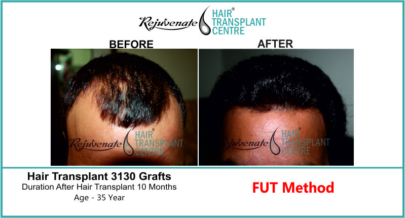35 Yr FUT Hair Transplant Result Front-Side Image 3130 Grafts