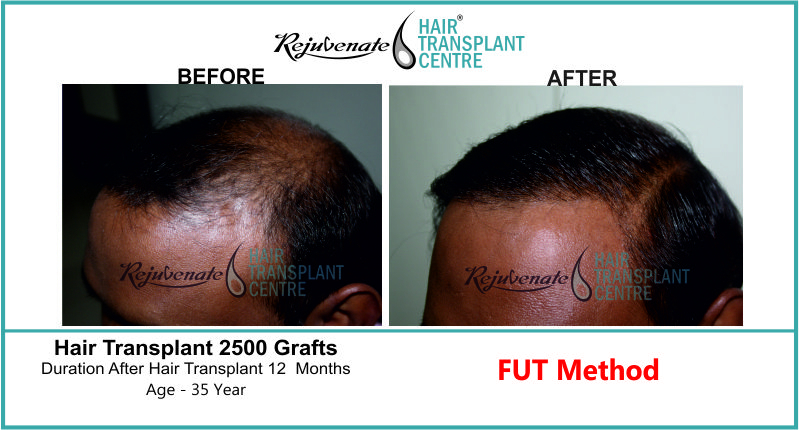 35 Yr FUT Hair Transplant Result Left-Side Image 2500 Grafts