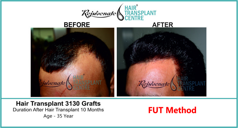 35 Yr FUT Hair Transplant Result Left-Side Image 3130 Grafts