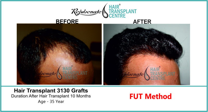 35 Yr FUT Hair Transplant Result Right-Side Image 3130 Grafts