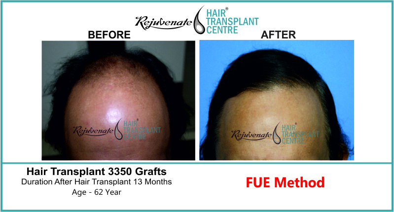 62 Yr FUE Hair Transplant Result Front-Side Image 3350 Grafts