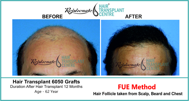 62 Yr FUE Hair Transplant Result Front-Side Image 6050 Grafts