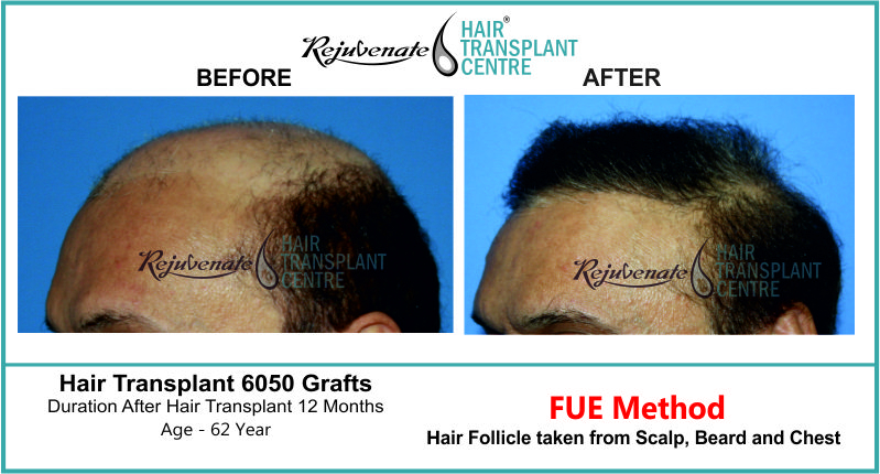 62 Yr FUE Hair Transplant Result Left-Side Image 6050 Grafts