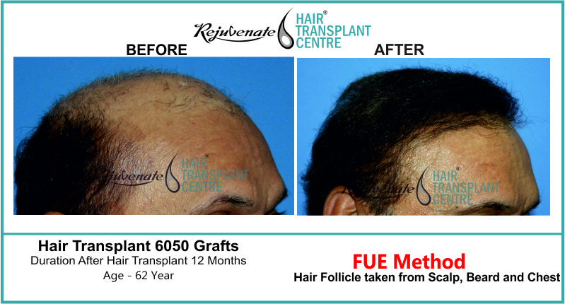 62 Yr FUE Hair Transplant Result Right-Side Image 6050 Grafts