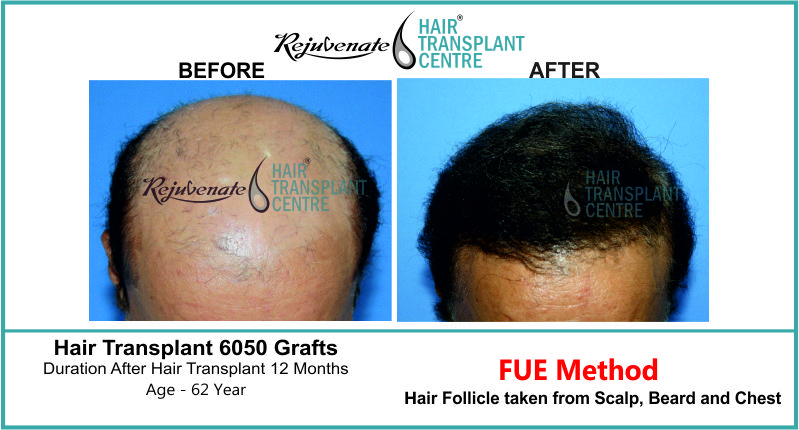 62 Yr FUE Hair Transplant Result Top-Side Image 6050 Grafts