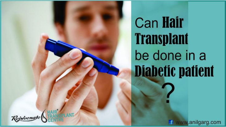 Can-Hair-Transplant-be-done-in-a-Diabetic-patient