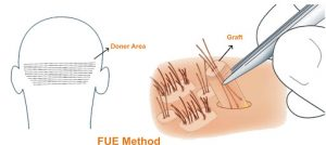 FUE Hair Transplant Technique - Rejuvenate Hair Transplant