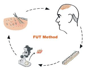 FUT Hair Transplant Technique - Rejuvenate Hair Transplant