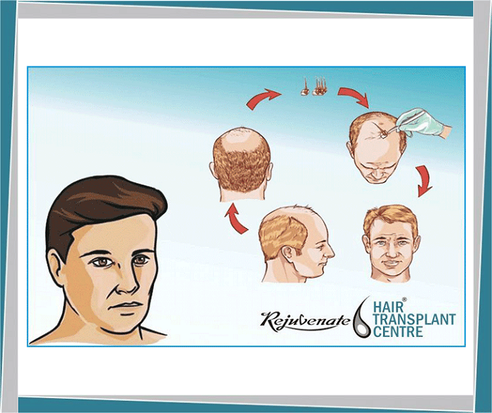 Recent Advanced Techniques in Hair Transplant