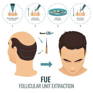 FUE Hair Transplant Procedure - Rejuvenate Hair Transplant