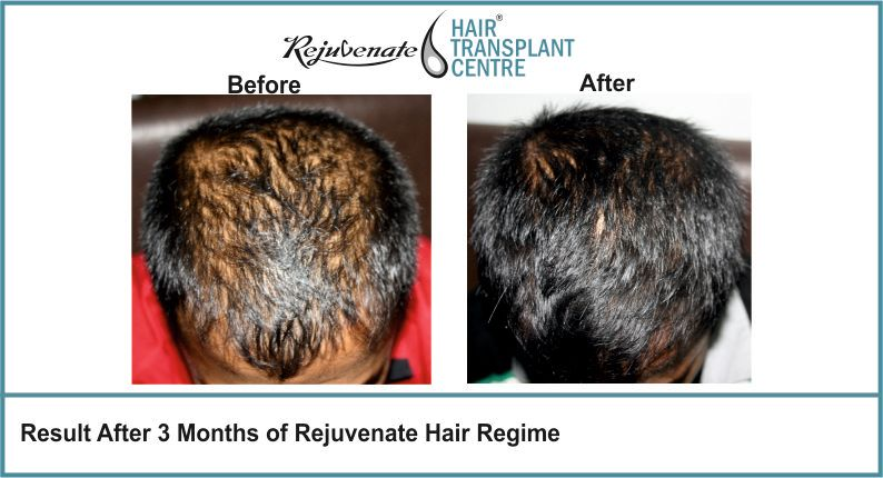 Result-After-3-months-of-Rejuvenate-Hair-Regime-1