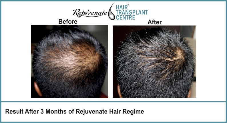 Result-After-3-months-of-Rejuvenate-Hair-Regime-10