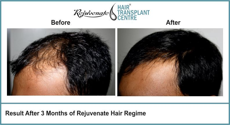 Result-After-3-months-of-Rejuvenate-Hair-Regime-4