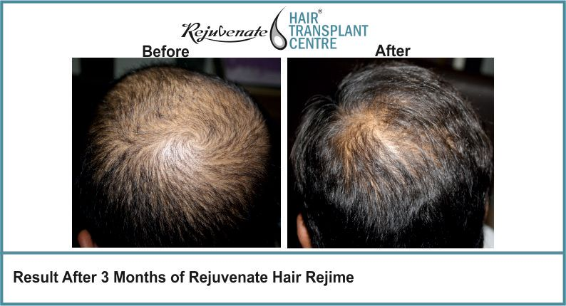 Result-After-3-months-of-Rejuvenate-Hair-Regime-5