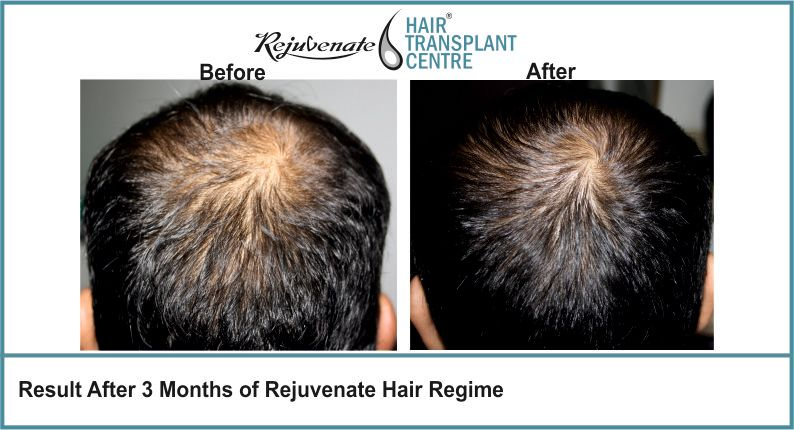 Result-After-3-months-of-Rejuvenate-Hair-Regime-6