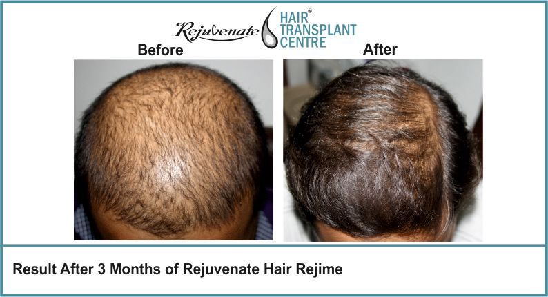 Result-After-3-months-of-Rejuvenate-Hair-Regime-7