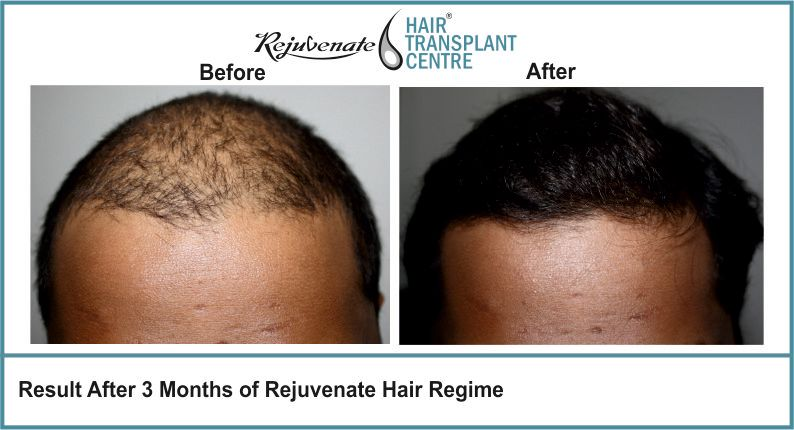Result-After-3-months-of-Rejuvenate-Hair-Regime-8