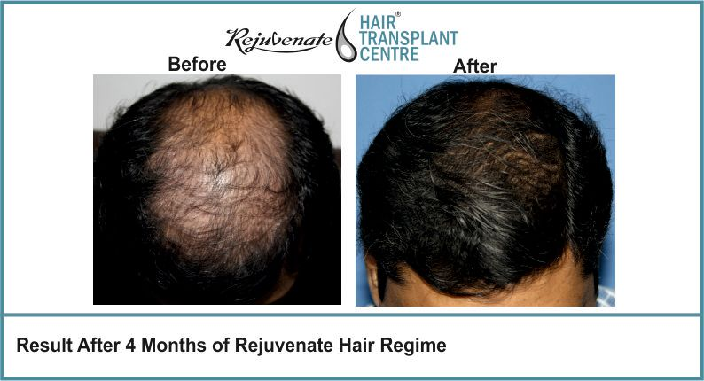 Result-After-4-months-of-Rejuvenate-Hair-Regime-1