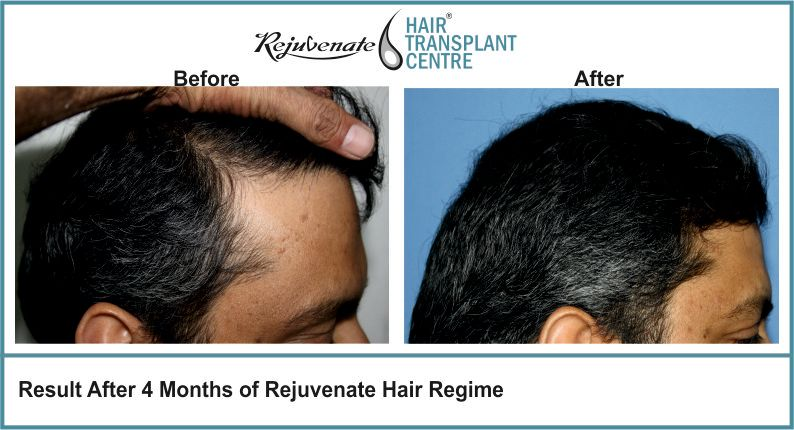 Result-After-4-months-of-Rejuvenate-Hair-Regime-2