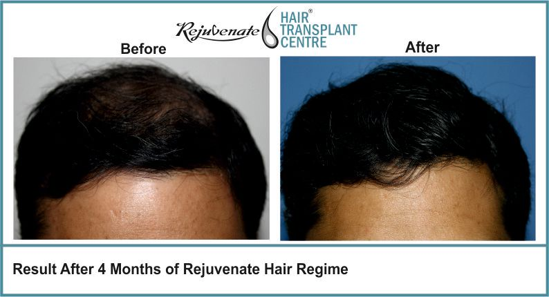 Result-After-4-months-of-Rejuvenate-Hair-Regime-3