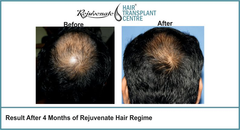 Result-After-4-months-of-Rejuvenate-Hair-Regime-4