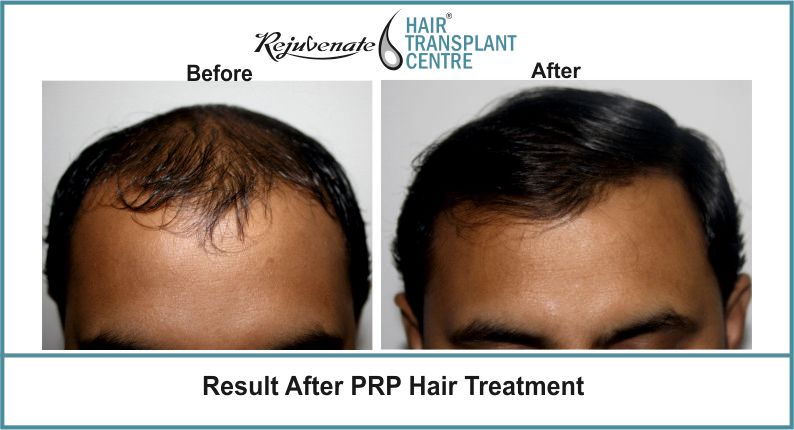 Result-After-PRP-Hair-Treatment
