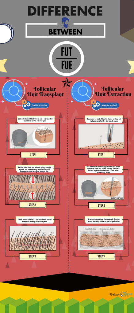 Difference Between FUT and FUE Hair Transplant