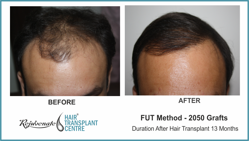 2050 Grafts FUT Hair Transplant Result After 13 Months