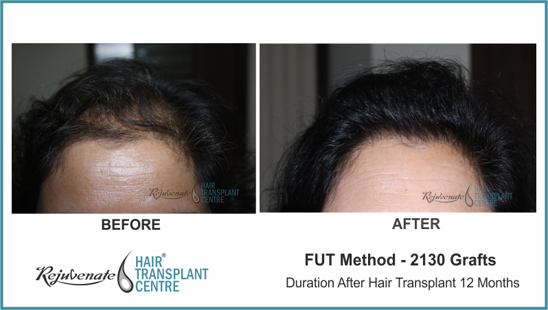 2130 Grafts FUT Hair Transplant result After 11 Months
