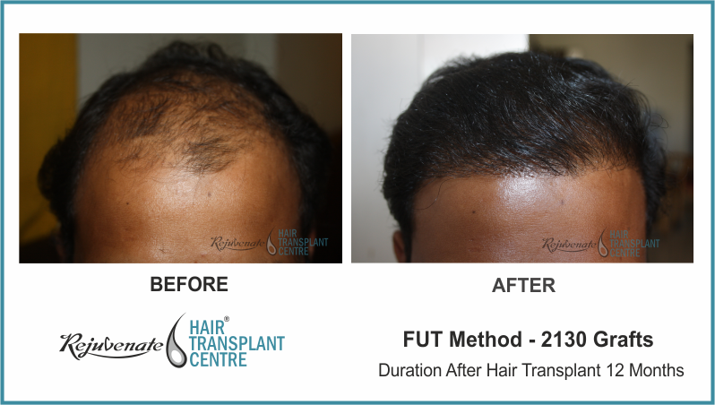 2130 Grafts FUT Hair Transplant result After 12 Months